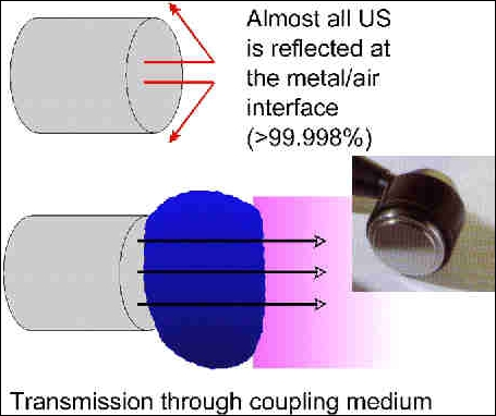 Ultrasound reflecting/transmission through coupling medium