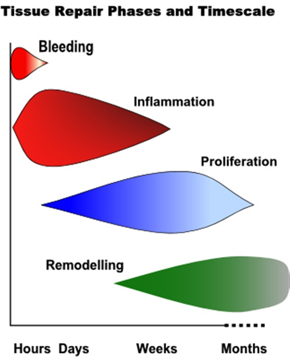 Phases of the tissue repair process